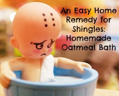 shingles home remedies