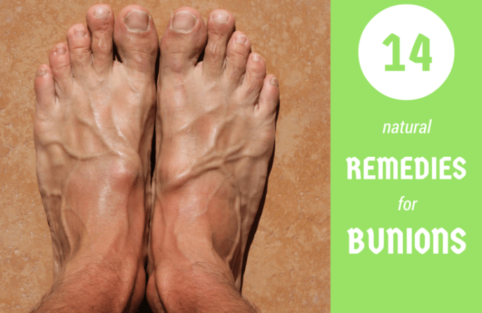 7df50fd457a How to Get Rid of Bunions – 10 Bunion Cures - HopingFor Blog